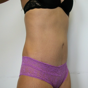 Abdominoplasty after 531875