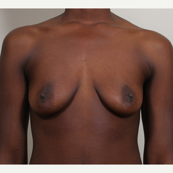 25-34 year old woman treated with Breast Implants before 3404780