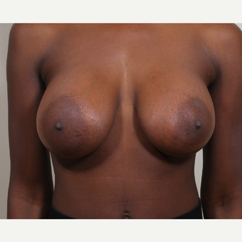 25-34 year old woman treated with Breast Implants after 3404780