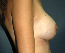 Breast Implants after 3545074