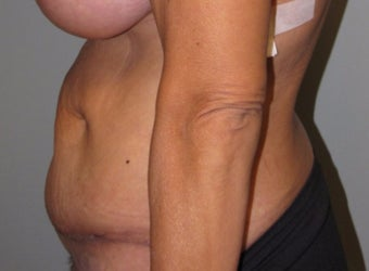 45-54 year old woman treated with Panniculectomy after 3583843