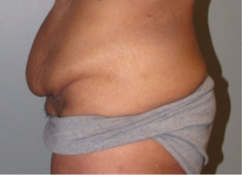 45-54 year old woman treated with Panniculectomy before 3583843