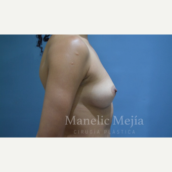 25-34 year old woman treated with Breast Augmentation before 3647398