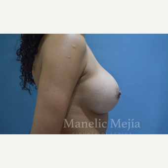 25-34 year old woman treated with Breast Augmentation after 3647398