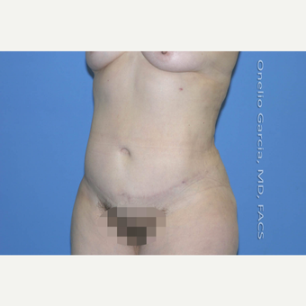 35-44 year old woman treated with Tummy Tuck + Vaser lipo after 2999005