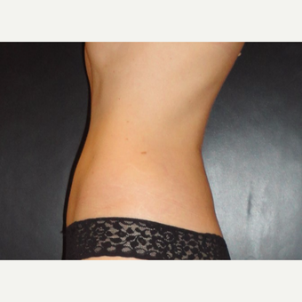 45-54 year old woman treated with SmartLipo MPX after 3738982
