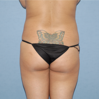 35-44 year old woman treated with Brazilian Butt Lift before 3108482