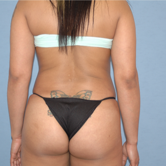 35-44 year old woman treated with Brazilian Butt Lift after 3108482