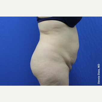 25-34 year old woman treated with Tummy Tuck before 3680027