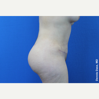 25-34 year old woman treated with Tummy Tuck after 3680027