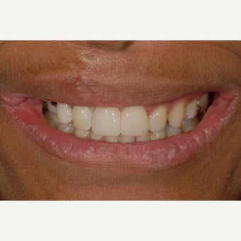 18-24 year old woman treated with Smile Makeover for missing teeth and microdontia.
