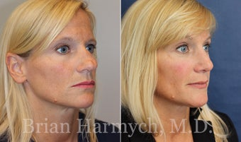 43 year-old female before and 9 months after Rhinoplasty before 3447466