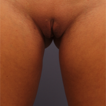 Labiaplasty after 3538524