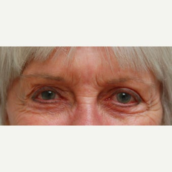 75 and up year old woman treated with Botox