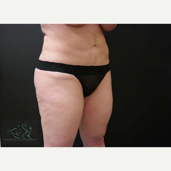 35-44 year old woman treated with Vaser Liposuction before 3591159