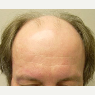 38 year old man treated with FUE Hair Transplant before 3564741