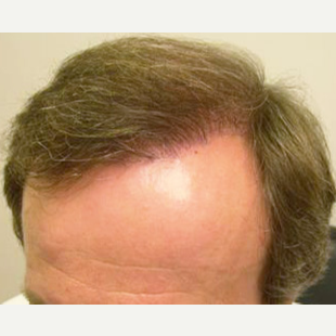 38 year old man treated with FUE Hair Transplant after 3564741