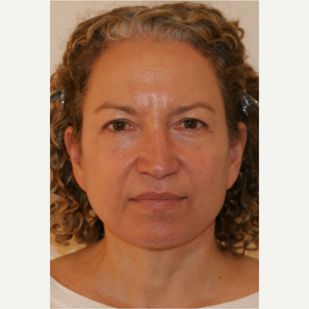 45-54 year old woman treated with Facelift after 3419925