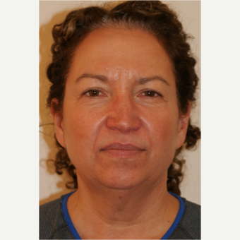 45-54 year old woman treated with Facelift before 3419925