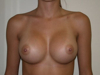 Breast Augmentation after 582419
