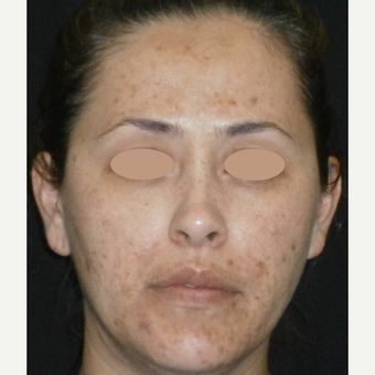 35-44 year old woman treated with Acne Treatment before 3150232