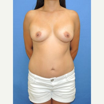25-34 year old woman treated with Breast Fat Transfer after 2110919