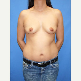 25-34 year old woman treated with Breast Fat Transfer before 2110919