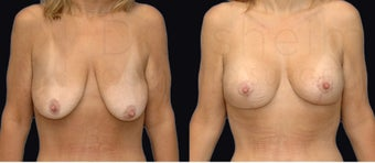 Breast lift with implants after weight loss before 1142582