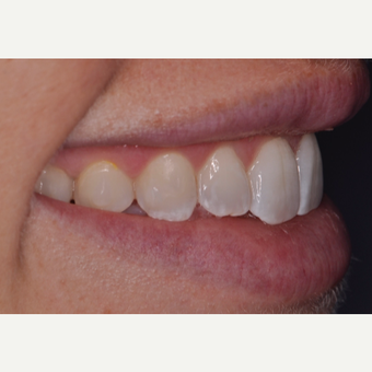 30 year old woman treated with Porcelain Veneers before 3538257