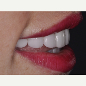 30 year old woman treated with Porcelain Veneers after 3538257