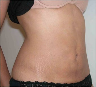 Liposculpturing after 618130