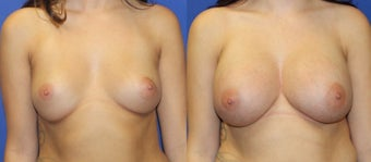 23yo, Breast Augmentation – 450cc High Profile Silicone Submuscular before 1283512