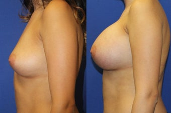 23yo, Breast Augmentation – 450cc High Profile Silicone Submuscular after 1283512