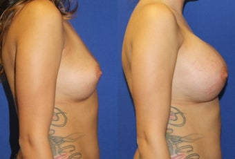 23yo, Breast Augmentation – 450cc High Profile Silicone Submuscular 1283512
