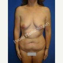 35-44 year old woman treated with Breast Augmentation before 1550889