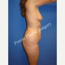 35-44 year old woman treated with Breast Augmentation 1550889