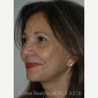 51 year old woman treated with Facelift after 3486333