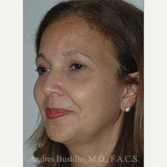 51 year old woman treated with Facelift before 3486333