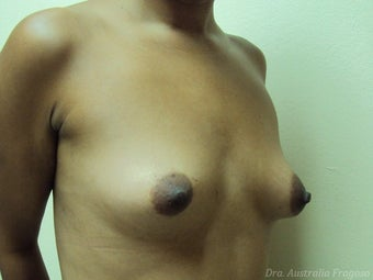 21 year old female treated for breast augmentation before 968559
