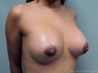 21 year old female treated for breast augmentation after 968559