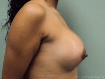 21 year old female treated for breast augmentation 968559