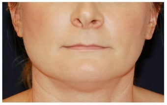 Chin Liposuction before 1340876
