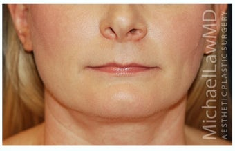 Chin Liposuction after 1340876