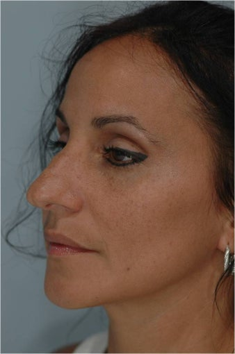 Rhinoplasty before 292543