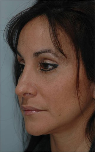 Rhinoplasty after 292543