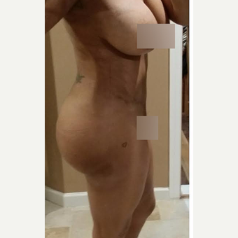 35-44 year old woman treated with Brazilian Butt Lift after 3539090