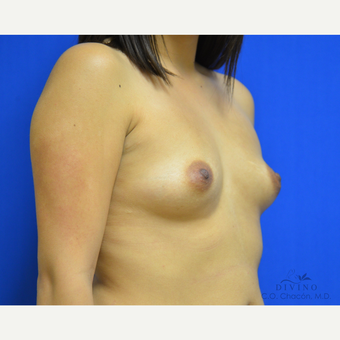 25-34 year old woman treated with Breast Augmentation before 3386455