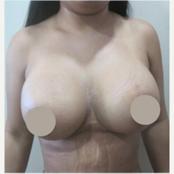 25-34 year old woman treated with Breast Lift after 2048739