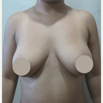 25-34 year old woman treated with Breast Lift before 2048739