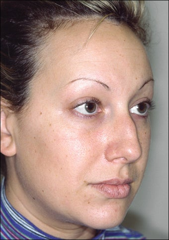 Rhinoplasty before 1023309
